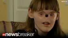HOPE: Girl Born With No Nose or Eyes Faces Life Changing Surgery