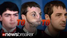 SAVING FACE: Historic Face Transplant Allows Disfigured Gunshot Victim New Life