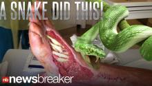 GROSS: Man VS Wild Host Posts Disgusting Video of Snake Bite Victim's Wound; Pic Goes Viral