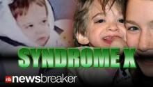 SYNDROME X: Girl with Mysterious 'Toddler' Illness Dies at 20 Years Old
