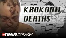 Lethal Drug Krokodil Claims First Victims in America; Doctors Call it End of the Road Drug