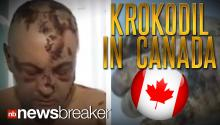 SPREADING: Flesh Eating Drug Krokodil Turns Up in Canada