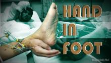 HAND IN FOOT: Man's Hand Surgically Attached to His Ankle to Keep It Alive