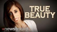 TRUE BEAUTY: Motivational Speaker with Rare Disorder Challenges Online Hate
