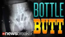 BOTTLE BUTT: Hospital X-Ray Shows Foreign Object Wedged Up Man's Anus