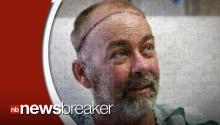 Texas Doctors Make History By Performing First Successful Scalp Transplant