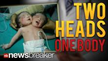 TWO HEADS: Rare Conjoined Twins Born in India Share One Body