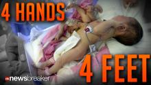 4 HANDS, 4 FEET: Chinese Baby Born with Extra Limbs After Twin Failed to Develop