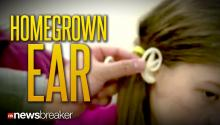 HOMEGROWN EAR: Little Girl Gets New Ear Using Cartilage from Own Rib Cage After Raccoon Attack