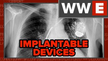 Mike Rogers' Implantable Medical Devices